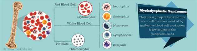 Best doctors for Myelodysplastic Syndrome in Delhi NCR India