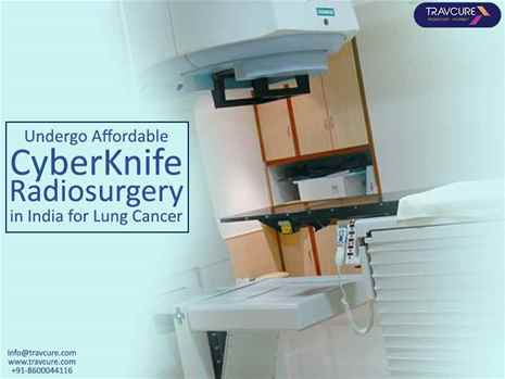 Undergo Affordable CyberKnife Radiosurgery for Your Lung Cancer Treatment in India