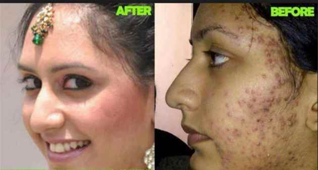 Skin whitening and lightening products 27739970300 answarsadat in uk,america,usa,itay,germany,canada