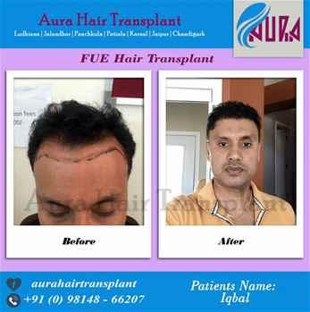 Aura Hair Transplant Clinic in Ludhiana Punjab