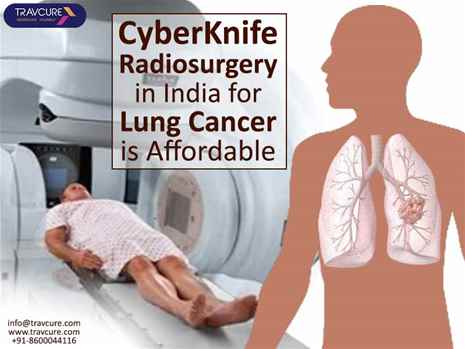 CyberKnife Radiosurgery in India for Lung Cancer is Affordable